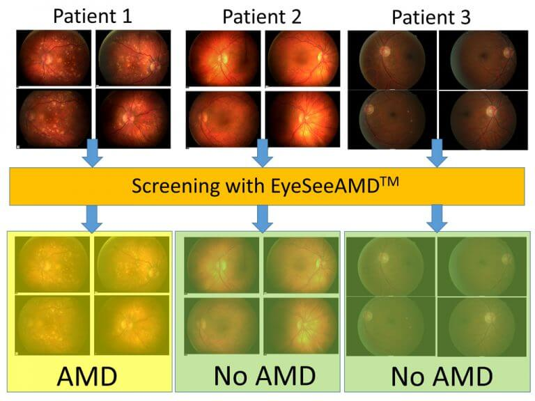 AMD_Screening_small
