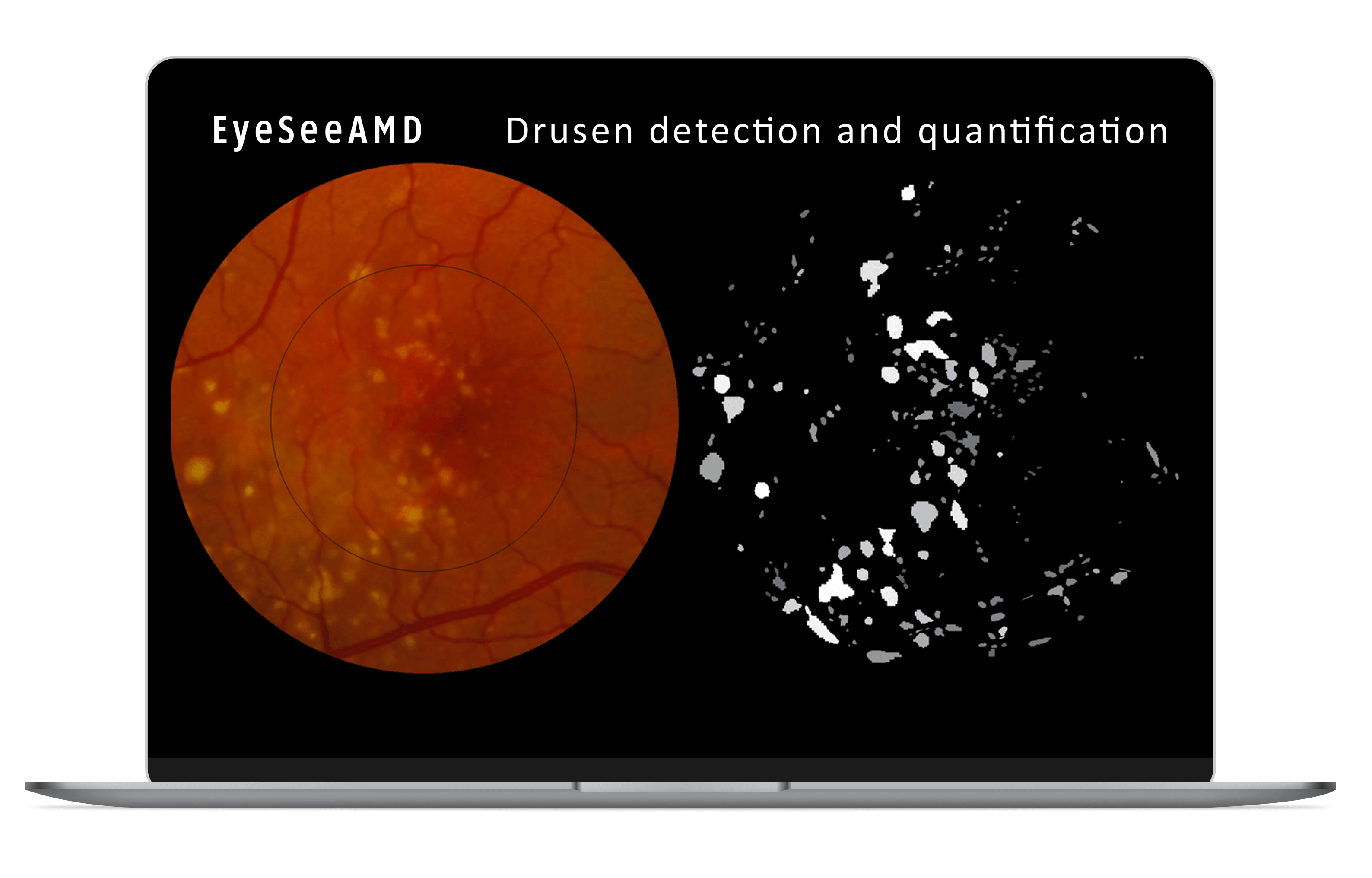 EyeSeeAMD_Macbook_mocup