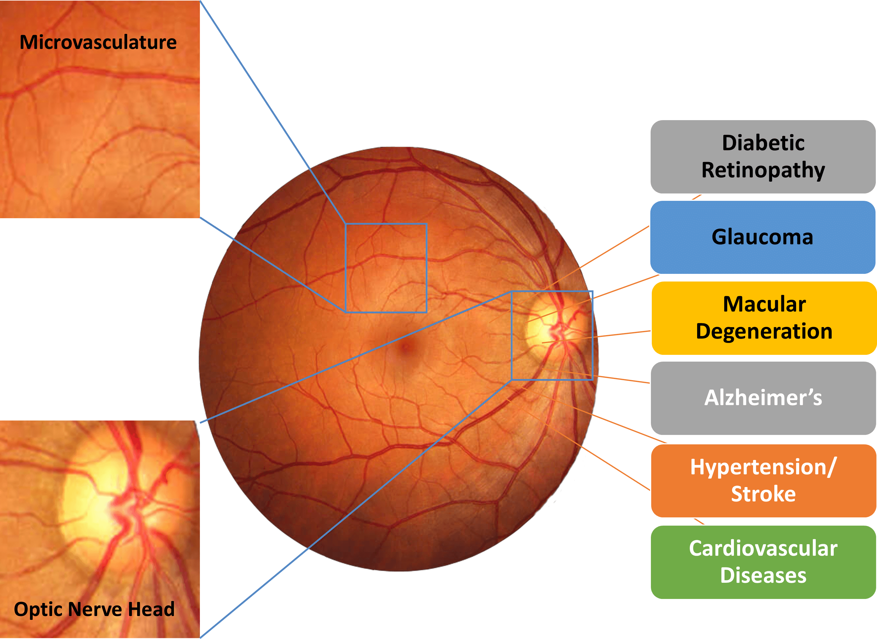 Retina_And_Diseases_2