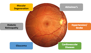 Retina_And_Diseases-cropped